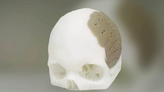 oxford-performance-materials-3D-printed-skull-implant