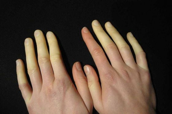 1024px-Raynaud-Syndrom