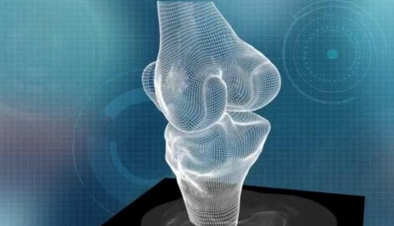 conformis_3d_printed_knee_scan